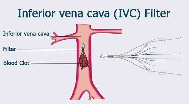 IVC Filter Charlotte | Gastonia NC