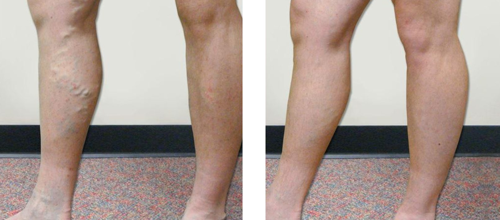 Varicose Veins Charlotte | Varicose Vein Treatment Gastonia