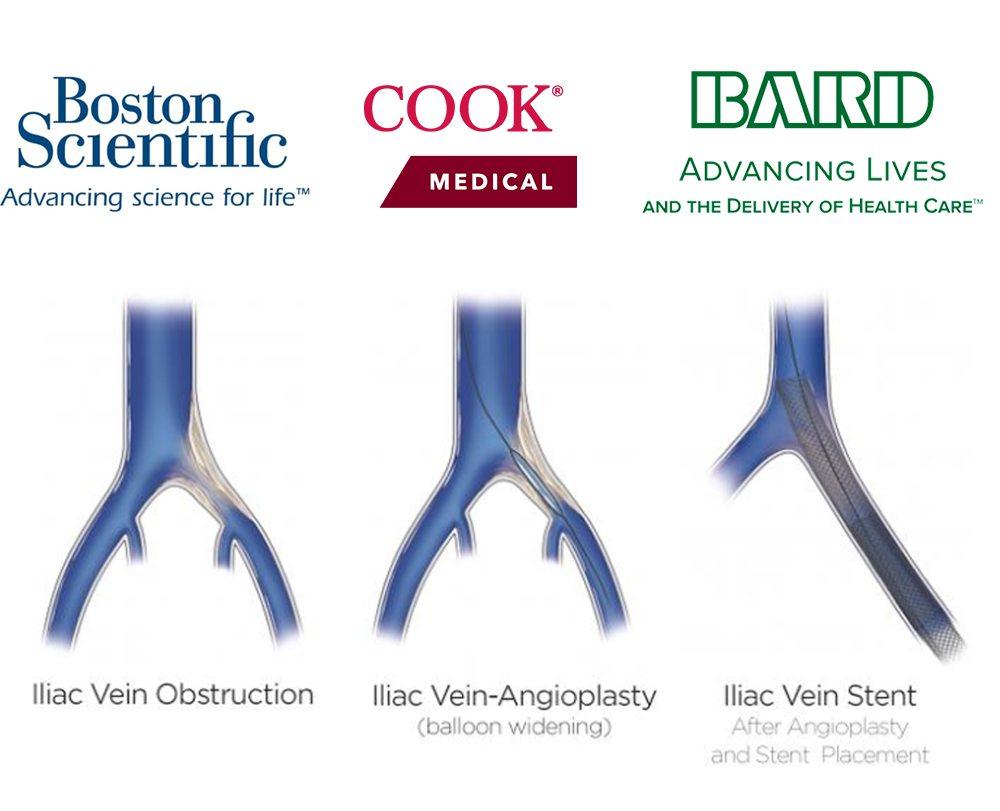 Venoplasty & Stenting, Vein Specialists of the Carolinas