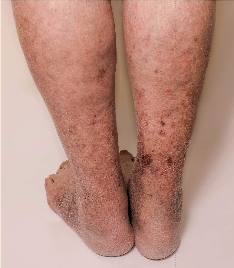 Post Thrombotic Syndrome, Vein Specialists of the Carolinas