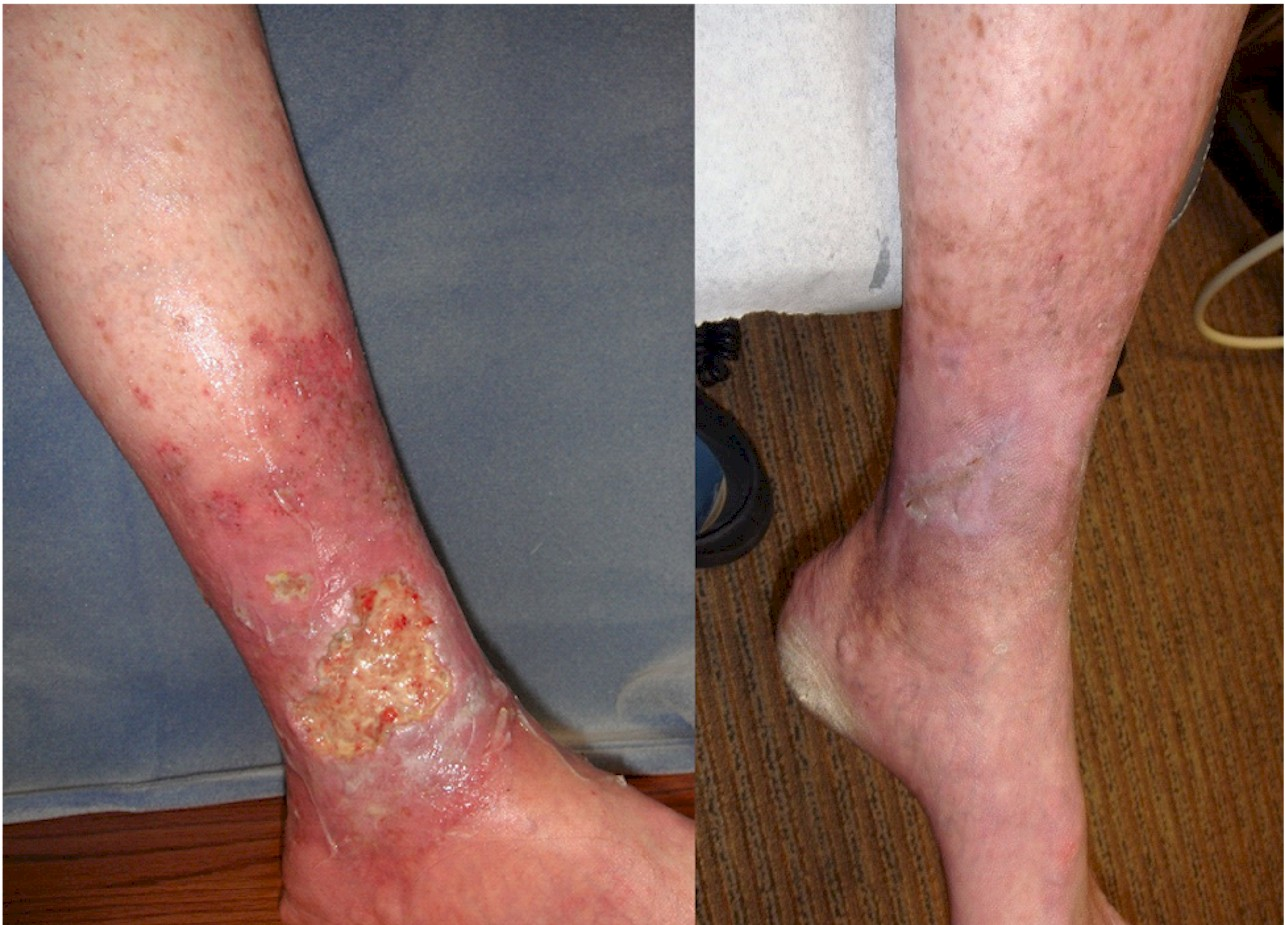 Venous Insufficiency – The Most Common Cause Of Lower-Leg Ulcers, Vein Specialists of the Carolinas