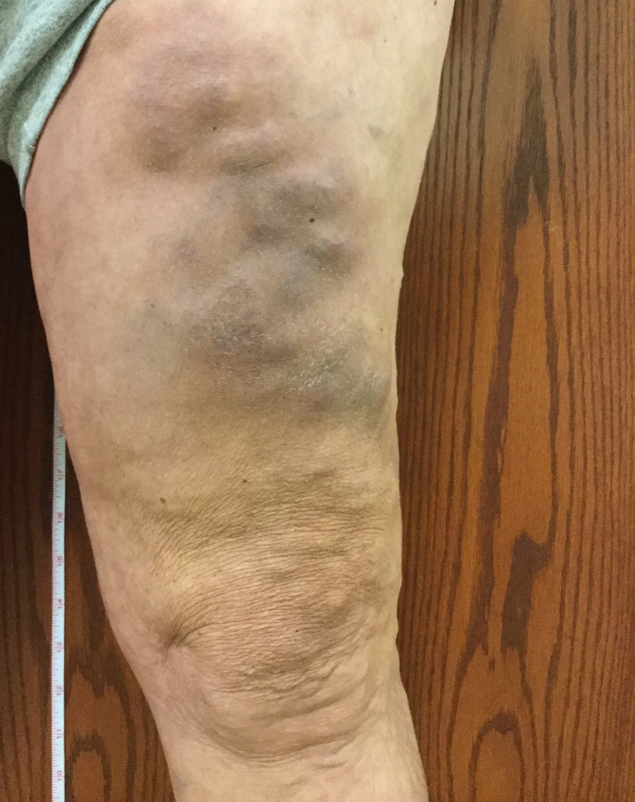 Phlebitis – Vein Disorders, Vein Specialists of the Carolinas