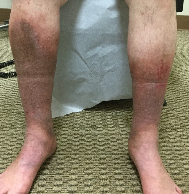 Chronic Venous Insufficiency, Vein Specialists of the Carolinas