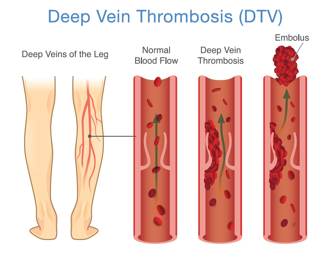 DVT, Vein Specialists of the Carolinas
