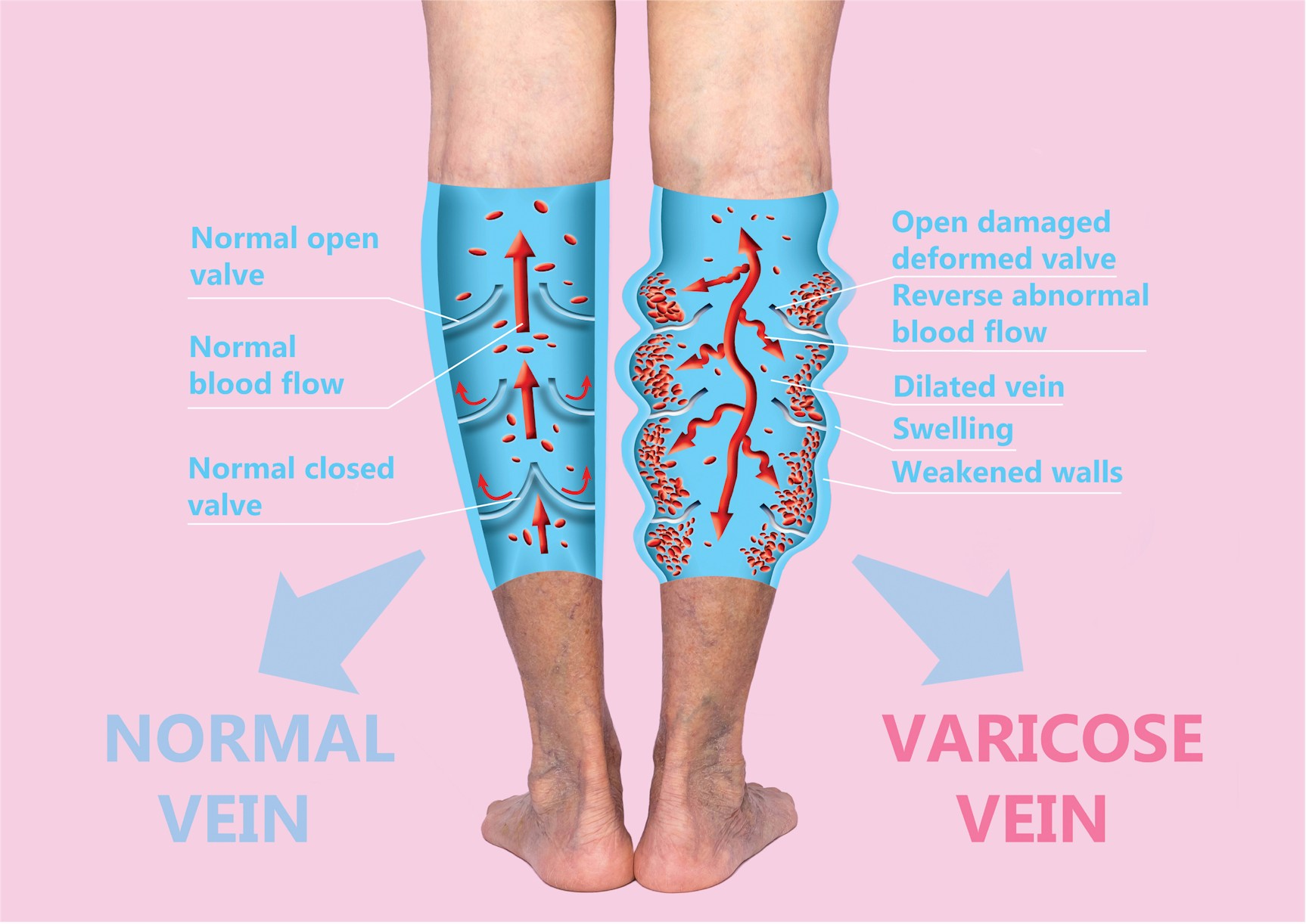 All Vein Procedures Are Designed To Help The Veins Empty The Tissues. Some procedures destroy veins and some open them up. This seems contradictory.