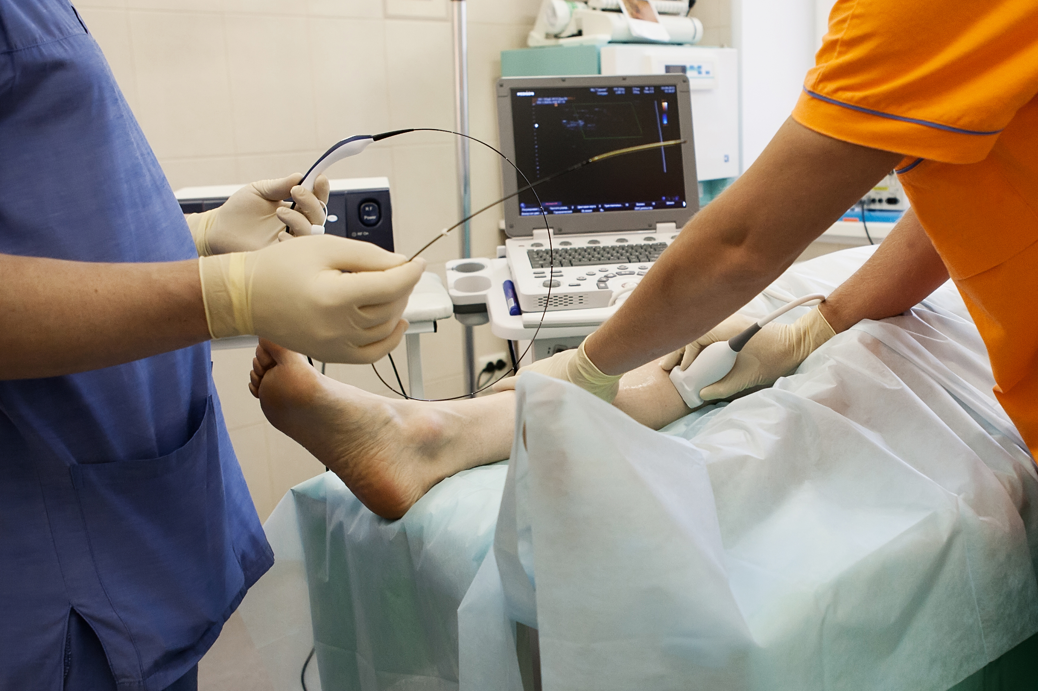 Radiofrequency Ablation, Vein Specialists of the Carolinas