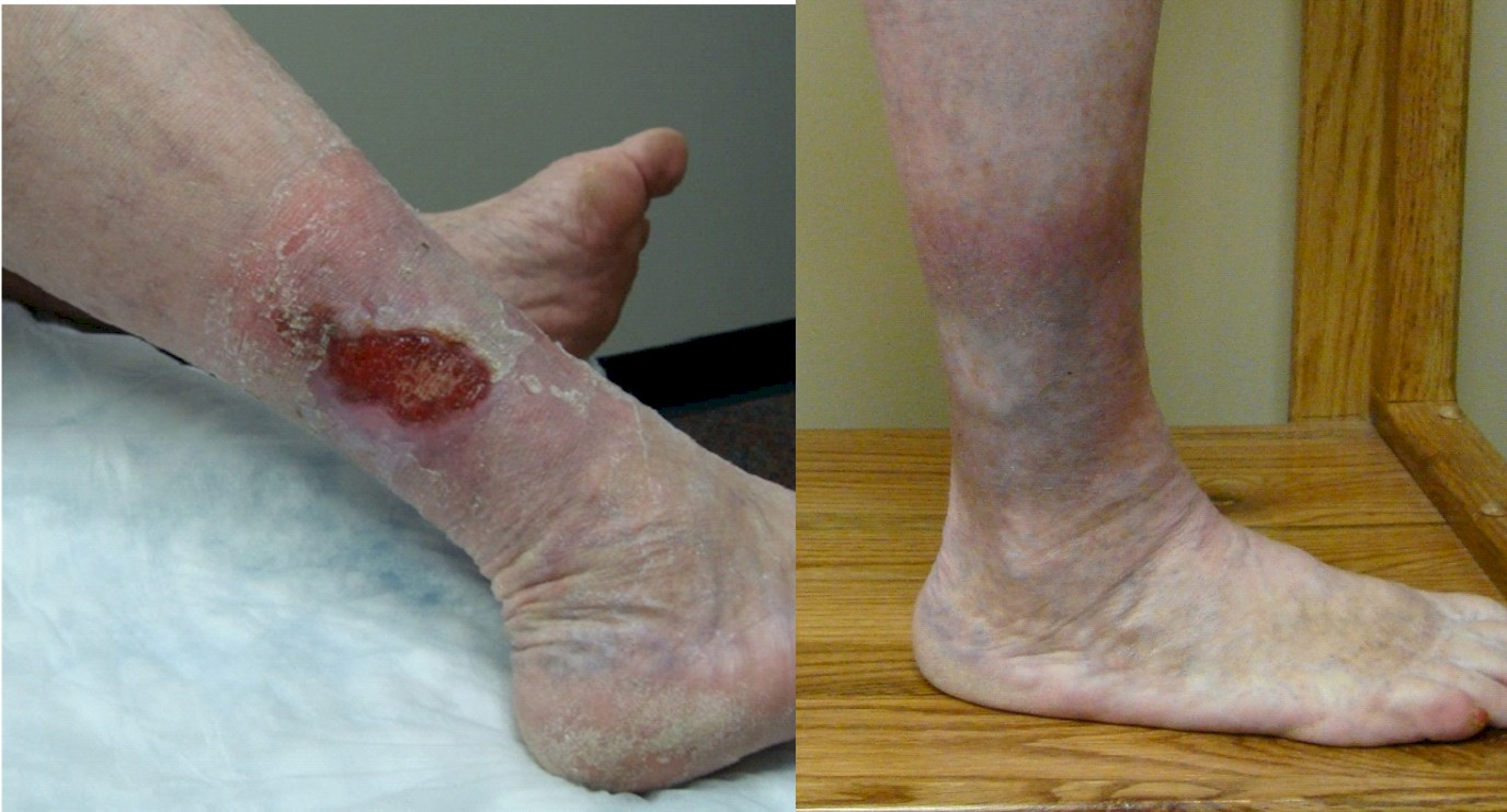 Venous Leg Ulceration, Vein Specialists of the Carolinas