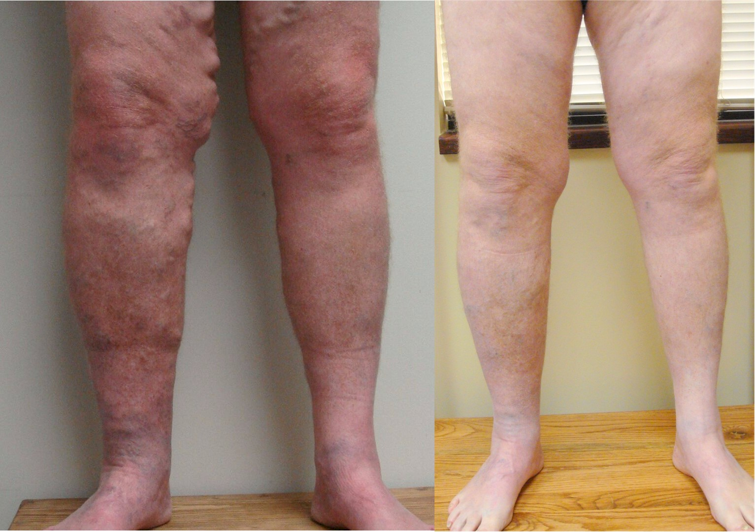 Before and After Picture of Varicose Vein Procedure - Vein Specialists of the Carolinas