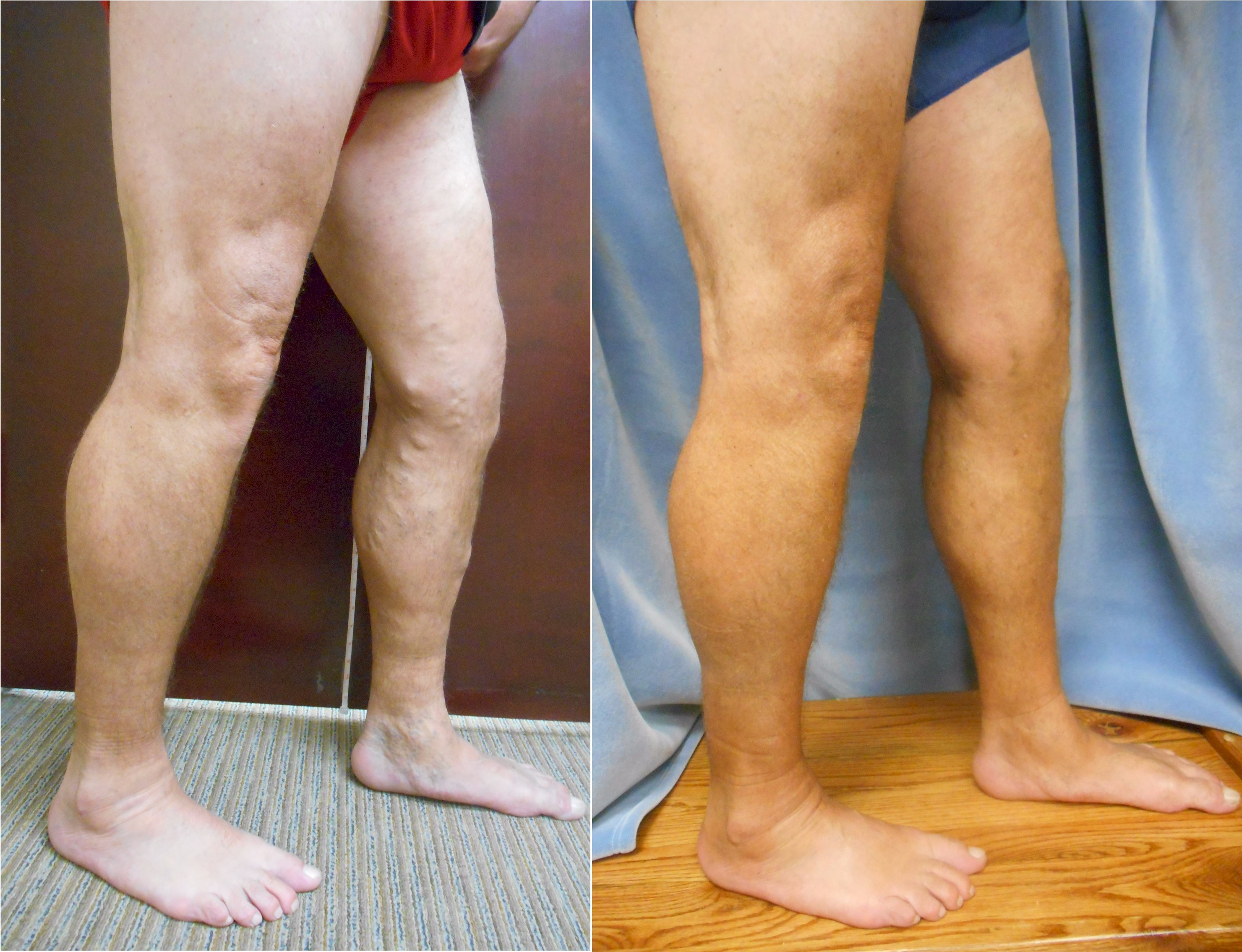Before and After Picture of Vein Procedure - Vein Specialists of the Carolinas