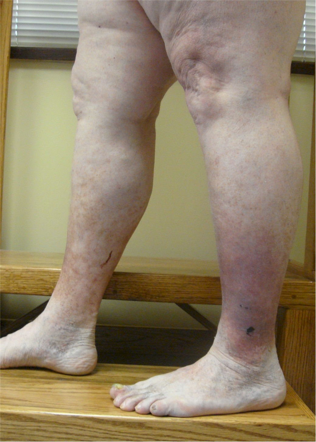 Vein Disorders, Vein Specialists of the Carolinas