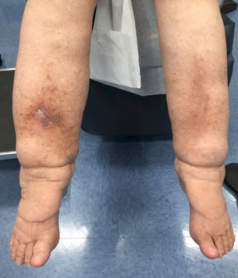 Leg Swelling, Vein Specialists of the Carolinas