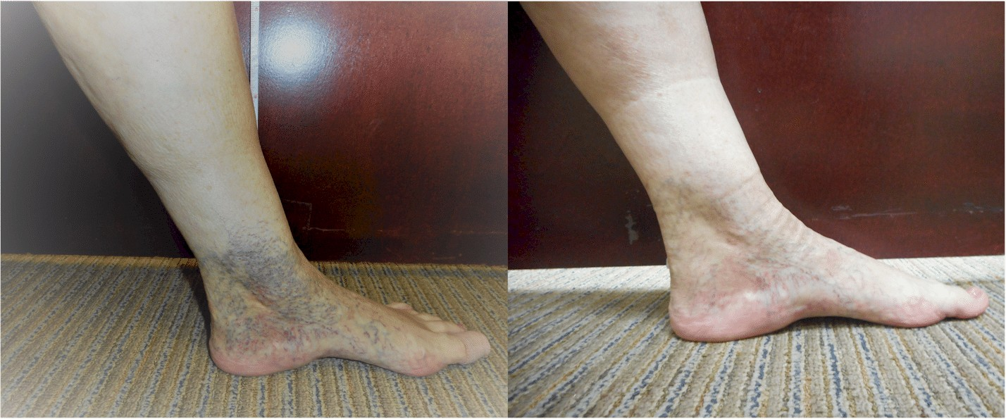 Sclerotherapy, Vein Specialists of the Carolinas
